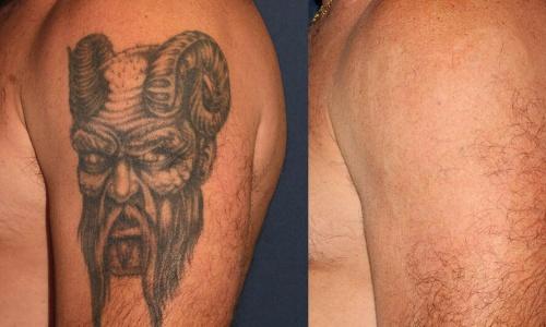 braço com tatuagem removida a laser no Rio de Janeiro