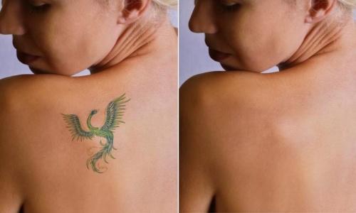tatuagem removida das costas da mulher no Rio de Janeiro