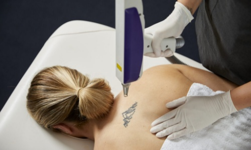 mulher deitada removendo tatuagem nas costas
