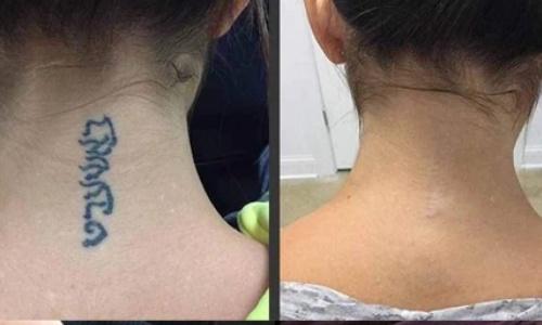 mulher com tatuagem removida na parte de trás do pescoço