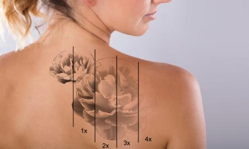 mulher com tatuagem removida no RJ